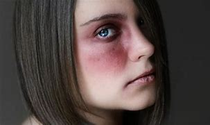 Image result for free pictures of woman abused